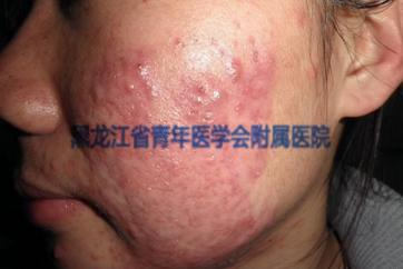 脓疱性痤疮的症状图