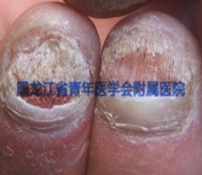灰指甲的症状图