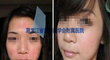 皮炎治疗前后对比图