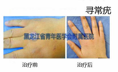 寻常疣治疗前后对比图
