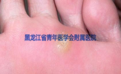 寻常疣(跖疣)的症状图